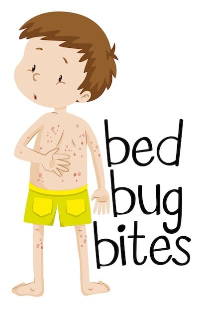 bed bug scars